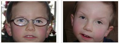 One child from the study with and without glasses.  The study found that the children were just as cute with glasses as without.